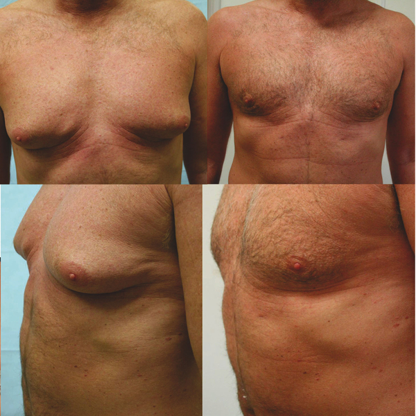 Finasteride Frauen Brustwachstum