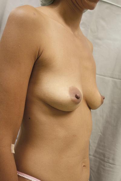 Wenn es keine kleine Brust eben der Taille gibt