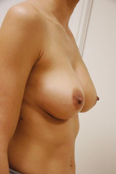 Wie von der Brust wenn zu füttern stehen implanty
